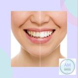 Blanqueamiento Dental De Consultorio + Limpieza