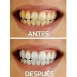 Blanqueamiento Dental + Limpieza Con Ultrasonido Y Fluor