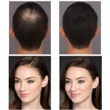 Fibras Capilares Keratina Pelo Polvo Alopecia Recarga 25gr