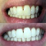 Blanqueamiento Dental Carillas Ortodoncia Caballito