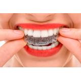 Placa Mio Relajante Dental Odontológica - Bruxismo
