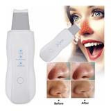 Espátula Facial Ultrasónica Peeling Skin Scrubber Recargable