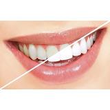 Odontologia Implantes Ortodoncia Estetica Dental Oferta