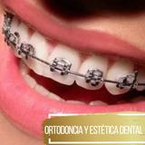 Ortodoncia Brackets Metálicos Instalación