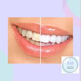 Blanqueamiento Dental Ambulatorio + Limpieza Dental