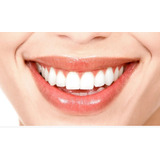 Implante Dental Impor.+corona De Porcelana$39990osde-medife