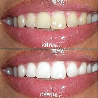 01 Gel Carvao Ativo Clareamento Dental Manutencao Clareador R 15