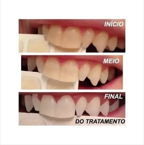 01 Seringa Gel Clareamento Dental 44 Usa Whiteness R 13 00 Em