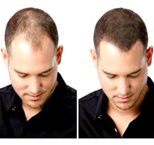 03 un toppik hair 27,5g disfarce  calvicie fibers queratina