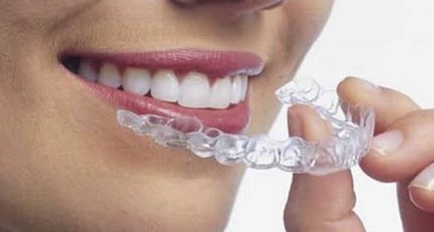 1 Par De Moldeira Termo Moldavel Para Clareamento Dental R 9 90