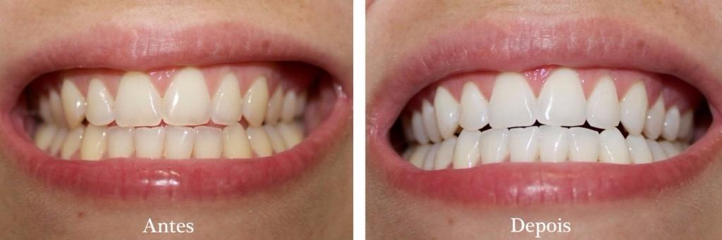 1 Par Moldeira Para Clareamento Dental Termomoldavel Tam M R 17
