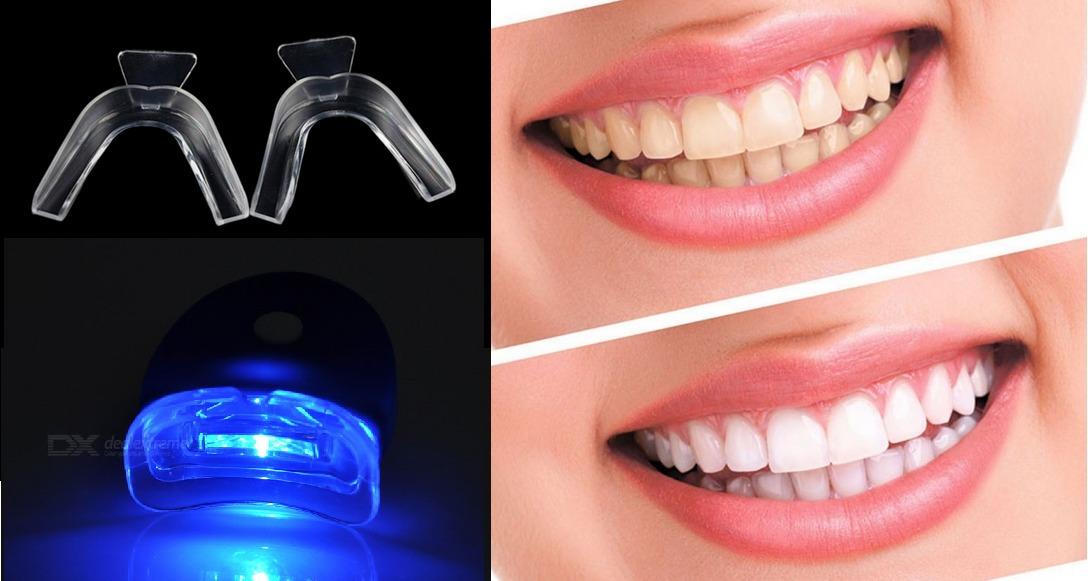 1 Par Moldeiras P Clareamento Dental 1 Luz Led Baterias R 24