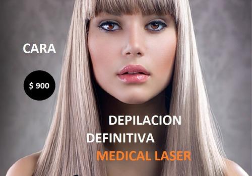 1 sesión de depilación definitiva laser de cara