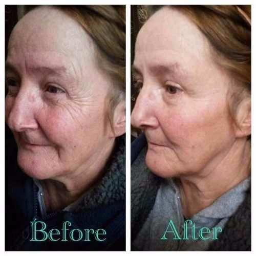 ageless resultados