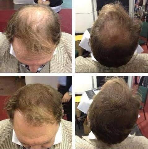 100g de nano hair en 2 recargas de 50g c/u castaño oscuro