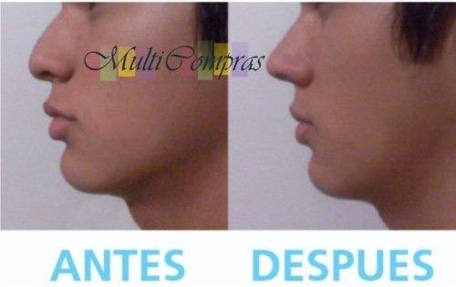 1par de corrector nasal rulav nariz bella 30seg sin cirugia