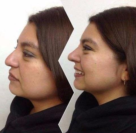 2 correctores nasales rulav respingador nariz bella