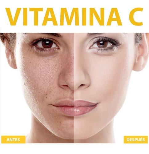 2 unids suero vitamina c 20% + á. hialurónico · antimanchas