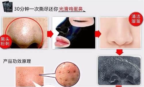 200x mascara removedora de cravos black head(pronta entrega)