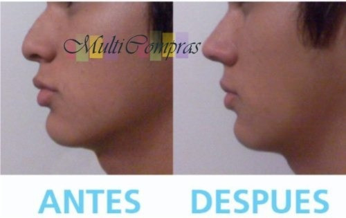 2pares d corrector nasal nariz bella 30seg sin cirugia rulav