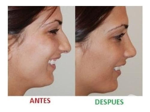 3 pares corrector respingador nariz nose up levantada t1441