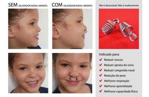 3 pares desvio de septo, adenoide, dilatador nasal p, m ou g