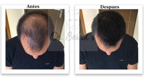 3 tónicos crecimiento de barba, calvicie, alopecia.