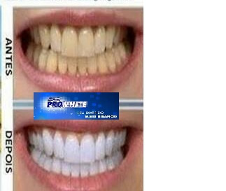 3 Unidades Creme Gel Dental Hinode Clareador Pro White 90g R 23