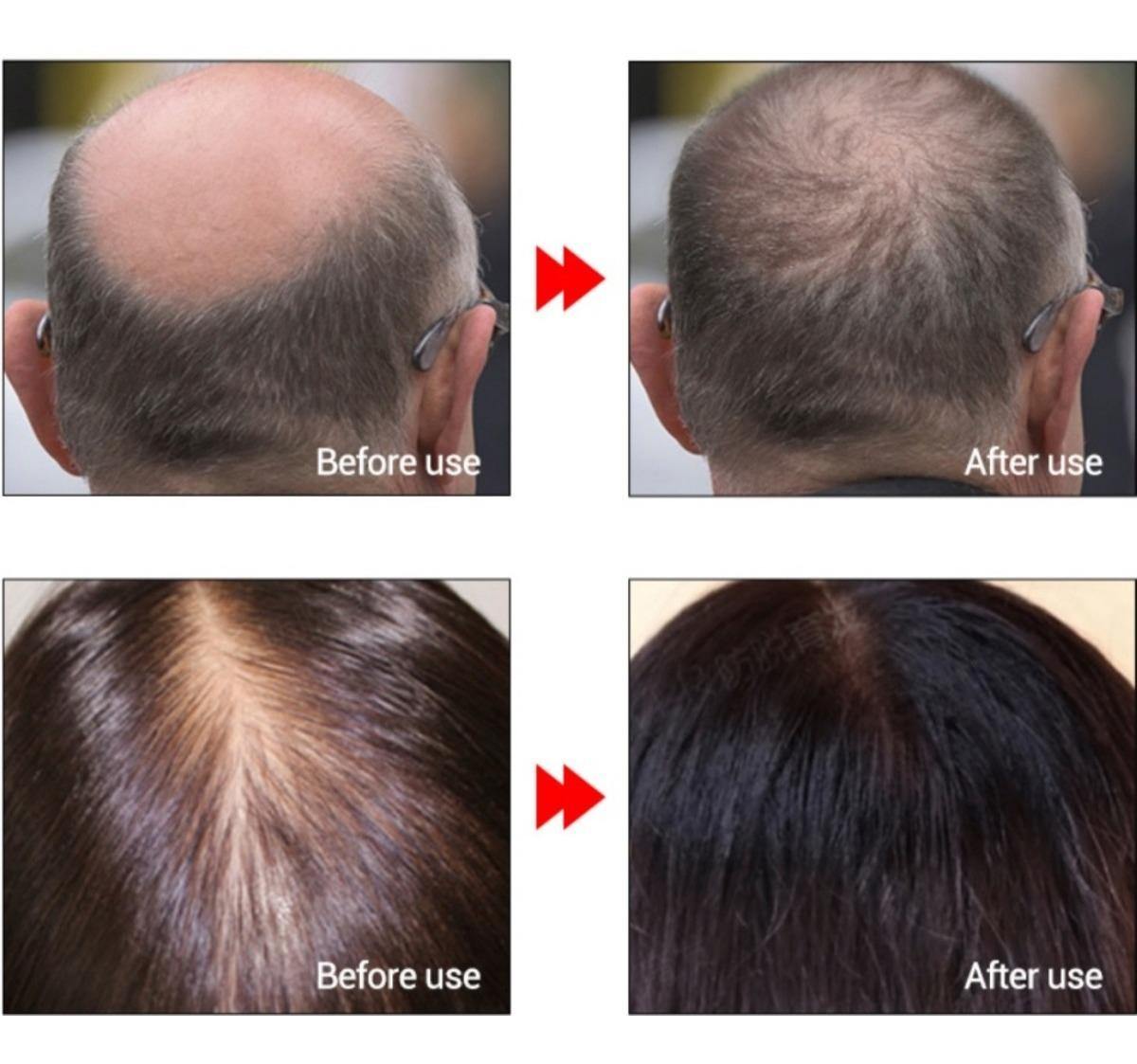 Alopecia Androgenetica Meu Tratamento Com Imagens Alopecia