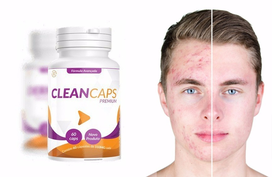 clean caps acne