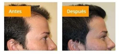 60 capsulas follicle rx caida de cabello calvicie - hosal