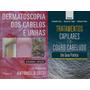 Dermatoscopia Dos Cabelos tratamentos Capilares/couro Cabe