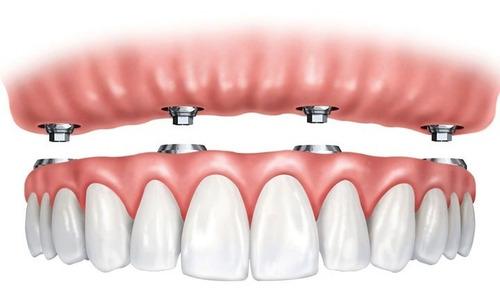 4 Implantes + Prótesis Completa De Acrílico.
