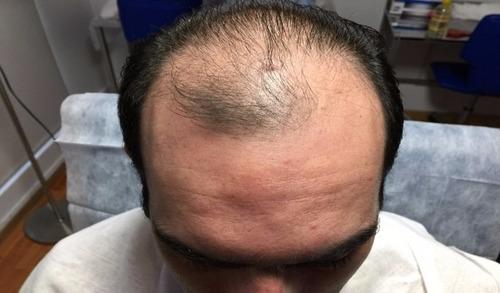 Implante Capilar Pelo X Pelo , Sin Cicatriz!!!!!!!!!