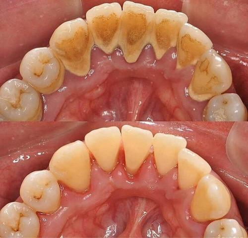 Limpieza Dental Con Ultrasonido Sarro Manchas
