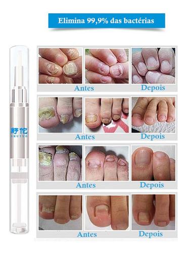 Antifungico Para Fungos Unhas Das Mãos Fácil De Usar