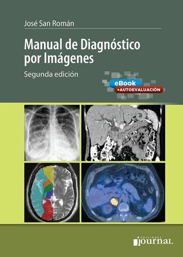 San Roman/eleta Manual De Diagnostico Por Imágenes Nuev Env