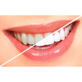 Bright Smiles - Kit Blanqueamiento Dental 4 Jeringas