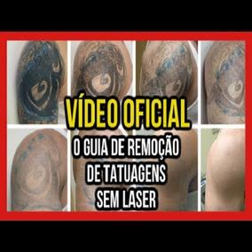 Descoberta Incrível- Agora É Possível Tirar Tatuagem Em Casa