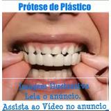Snap On Smile Prótese De Plástico Dentes Brancos C/ Molde