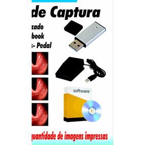 Placa De Captura Com Software Para Laudos Medicos
