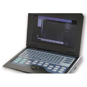 Ecografo Ultrasonido Digital Portatil