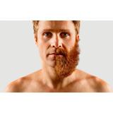 Tratamiento Para Crecer Barba En Solo 30 Dias Talika Hindu