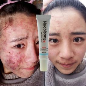 Nuobisong Remoção Cicatriz Acne Manchas Estrias Melasma 15g