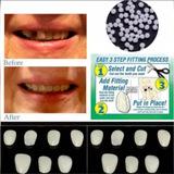Snap On Smile Temporário 12 Dentes P/ Encaixar Cola Resina