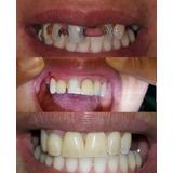 Corona Dental Diente Provisorio Acrílico En El Dia Estetica