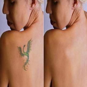 [ Método Comprovado] Remova Sua Tatuagem Em 30 Dias