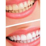 Kit 2 Caixas Clareador Dental C 56 Fitas Whithening Strips 3b9388e1bb