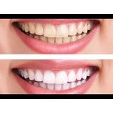 Moldeira Clareamento Saude Dental No Mercado Livre Brasil