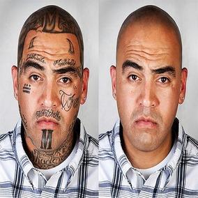 [ Veja O Vídeo] E Entenda Como Remover Tatuagem Sem Laser